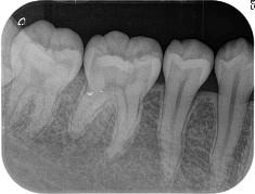 かわたに歯科医院 設備紹介 デジタルX線システム